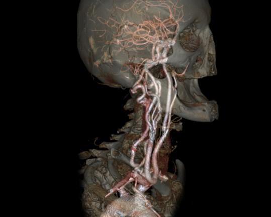 CT der Gefäße (CT-Angiographie)