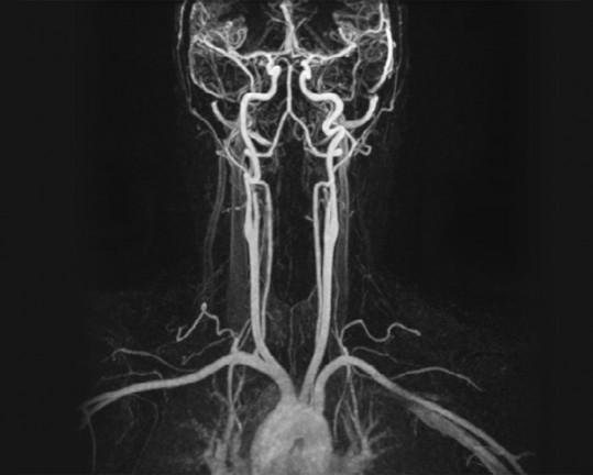 MRT der Gefäße (MR-Angiographie)